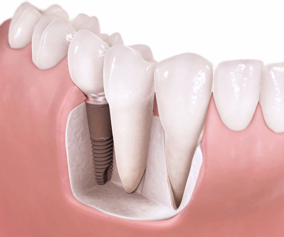 Implant zęba w stomatologii Stencel Chorzów