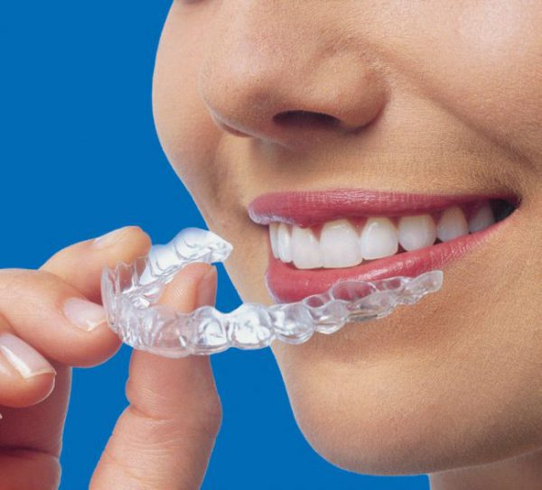 Aparat ortodontyczny Invisalign - Chorzów