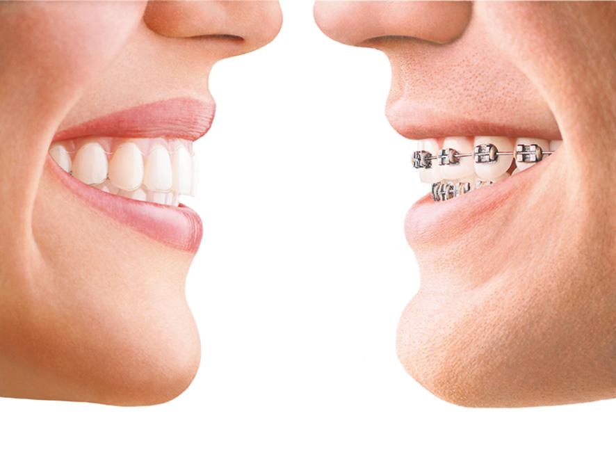 invisalign a zwykłe aparaty ortodontyczne